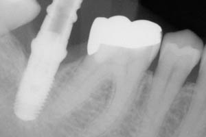 X-ray of dental implant post in place