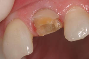 Damaged and broken tooth