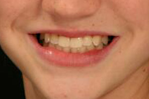 Perfectly aligned teeth following orthodontic care