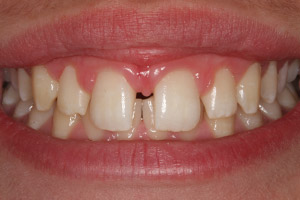 Smile with large gap between front teeth