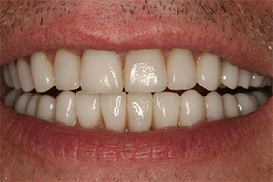 Closeup of porcelain veneer repaired smile