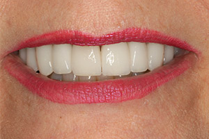 Closeup of smile implant supported crown