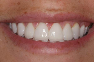 Closeup of flawless porcelain veneers