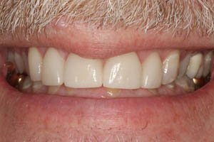Closeup of veneer repaired front teeth