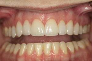 Front teeth with porcelain veneers