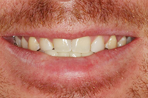 Closeup smile with yellowed uneven smile