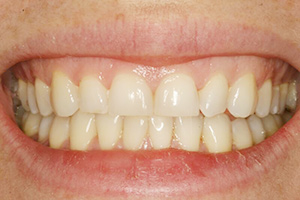 Closeup of smile with short front teeth