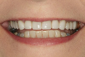 Close up of porcelain veneer treated smile