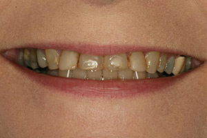 Close up of severely yellowed and worn teeth