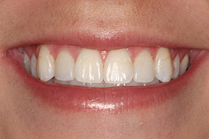 Teeth perfected with porcelain veneers