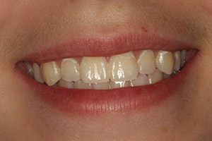 Teeth with yellowing and discoloration