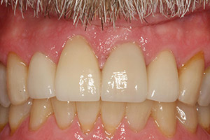 Smile perfected with natural looking veneers