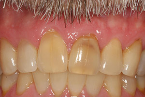 Severely yellowed front teeth