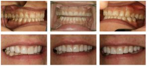 case study dental crowns