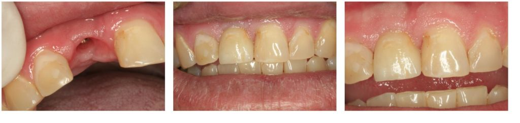 Series of teeth from missing tooth to dental implant placement