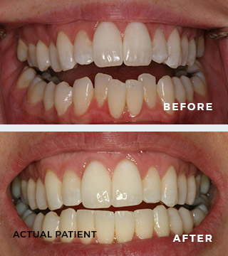 ClearCorrect Before and After